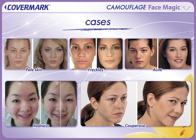 CMK052_FaceMagic_cases copy
