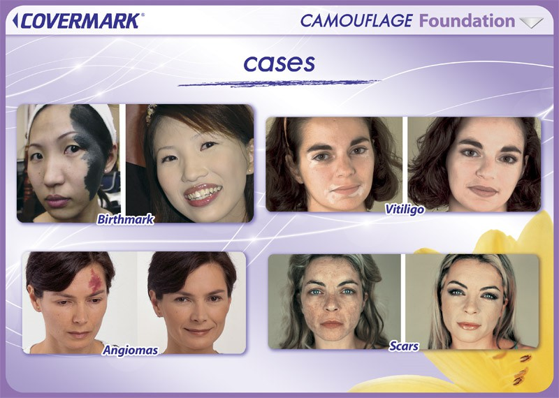 CMK055_Foundation_cases copy